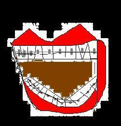 我想帶牙套