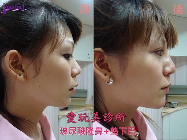 玻尿酸隆鼻+墊下巴03