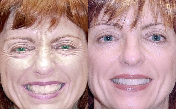 baltimore-botox-before-after-f-109