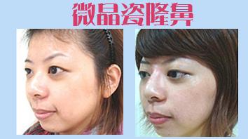 卡樂 微晶瓷隆鼻