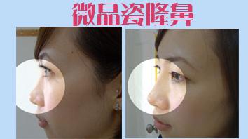 微晶瓷(晶亮瓷)隆鼻