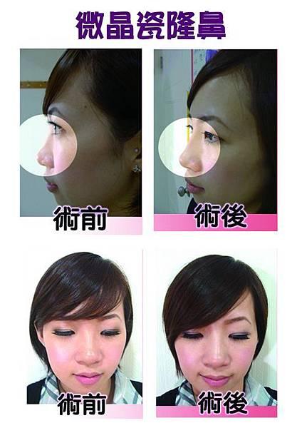 微晶瓷隆鼻1.jpg