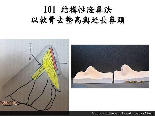 101 rhinoplasty.jpg