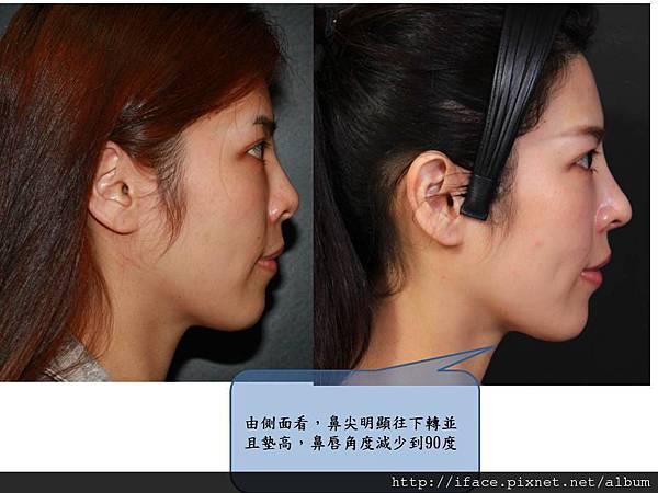 微整後的鼻整形 2