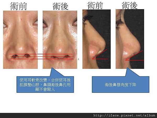使用耳軟骨與耳後肌膜