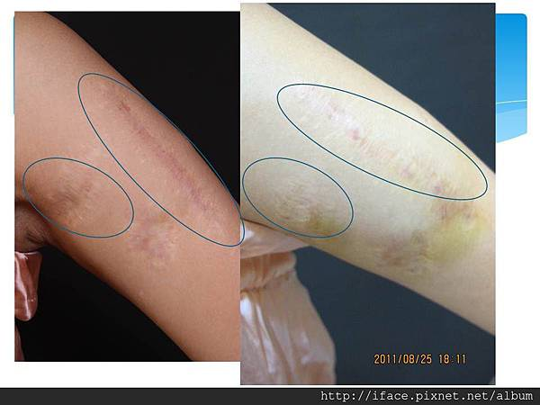 疤痕處理 1