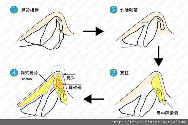 101結構隆鼻剖析
