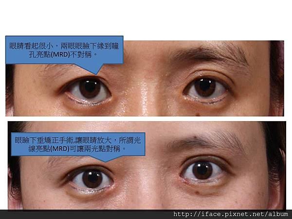 LA 提眼瞼肌手術 2