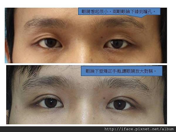 眼瞼下垂 2
