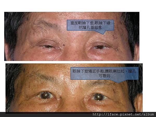 眼瞼下垂 4