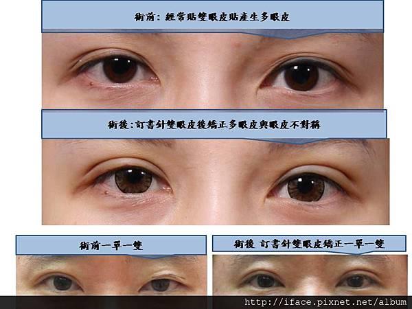 雙眼皮客人簡報照片