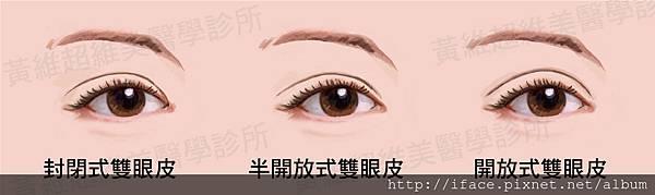 雙眼皮文章08