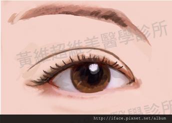 雙眼皮文章11