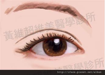 雙眼皮文章12