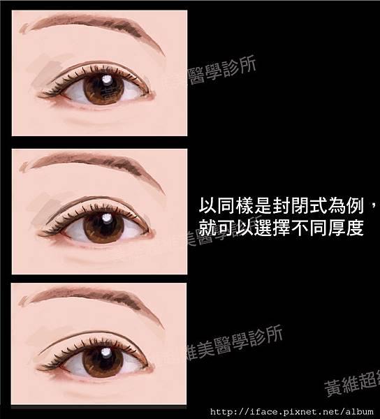 雙眼皮文章09