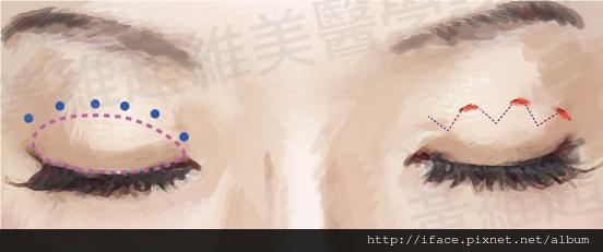 雙眼皮文章24