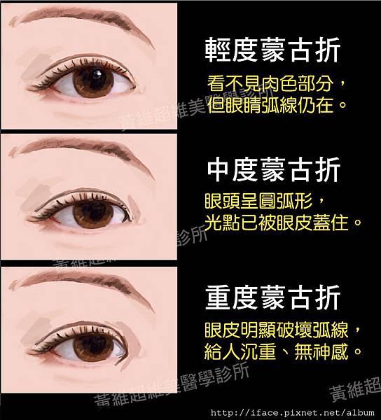 雙眼皮文章15