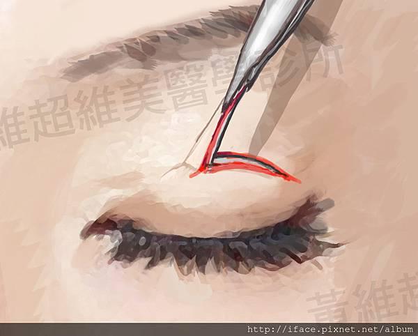 雙眼皮文章27