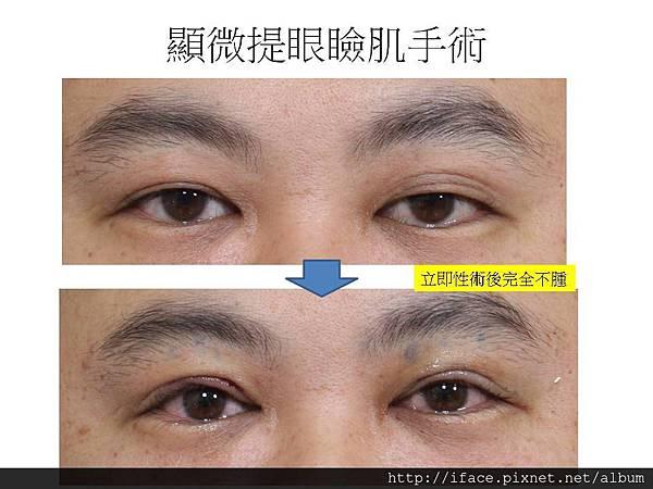 顯微提眼瞼肌手術