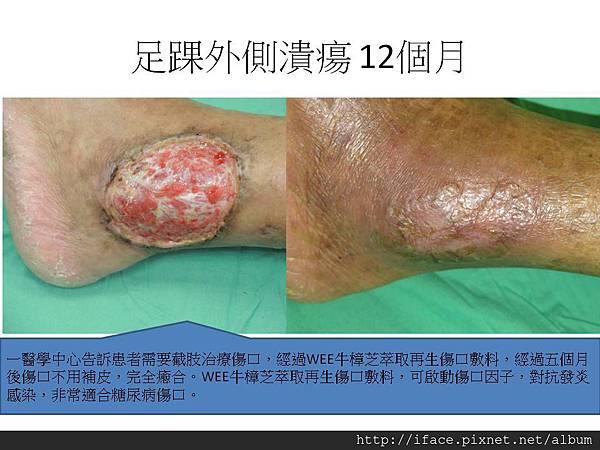 足踝外側潰瘍 12個月