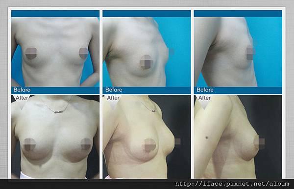 水刀豐胸隆乳