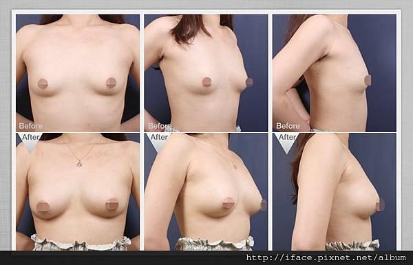 自體隆乳-2