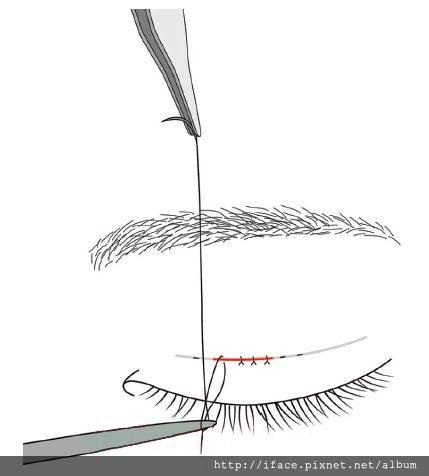 雙眼皮縫線