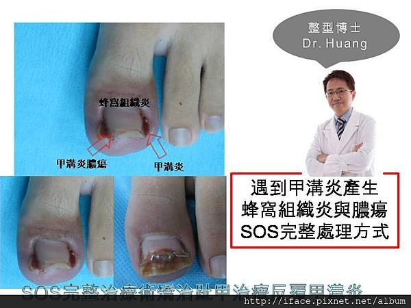 甲溝炎SOS治療 (2)
