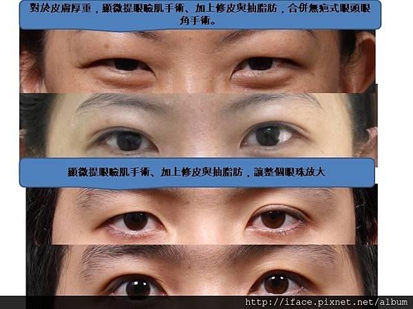 提眼瞼機手術
