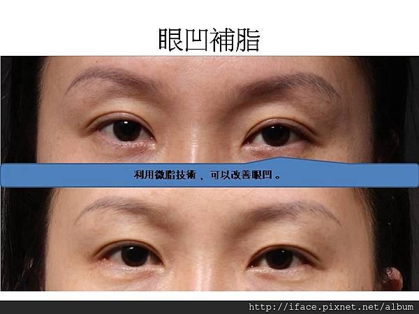 眼凹微脂重修