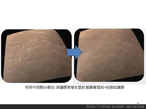 妊娠紋治療2