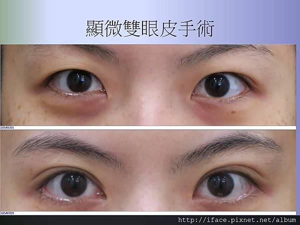 顯微訂書針雙眼皮術前術後比對