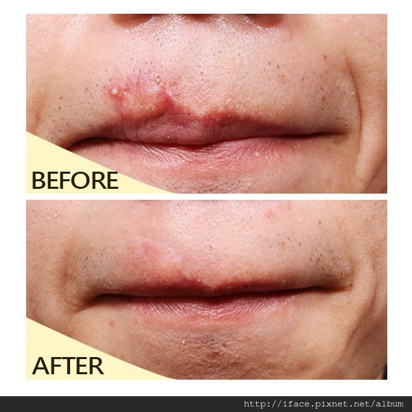 嘴唇疤痕蟹足腫