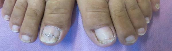 完成矯正治療後的灰指甲.jpg