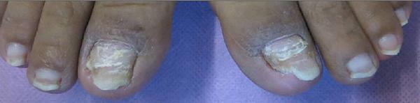 初期治療中的灰指甲.jpg