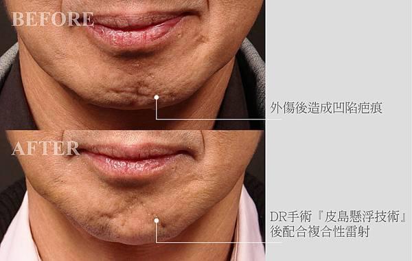 真皮層修補痘疤案例02.jpg