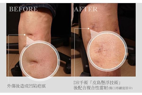 真皮層修補痘疤案例0212.jpg