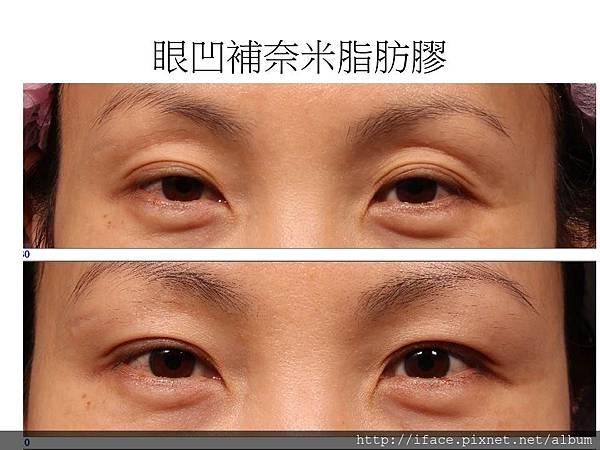 底 骨折 右 眼 眼窩