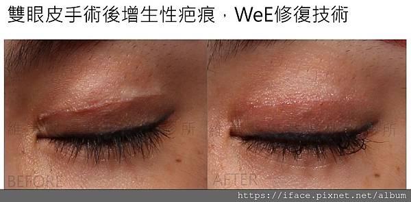 割雙眼皮增生性疤痕