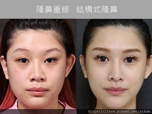 鼻重修整型