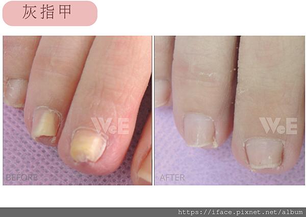 灰指甲01