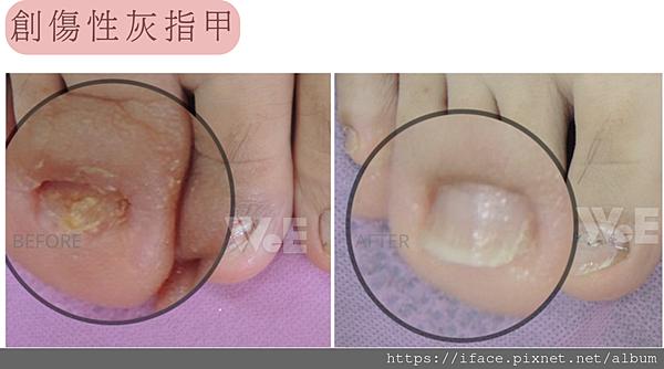 灰指甲傷口