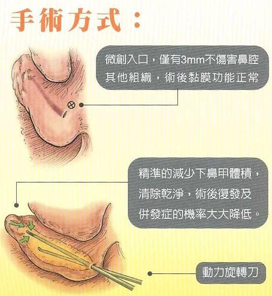 下鼻甲微創手術 內頁2.jpg
