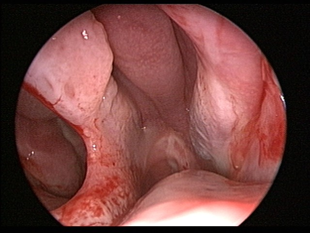 septal perforation