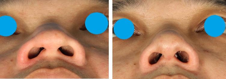 hook nose-3.jpg