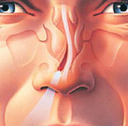 deviated nose