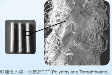 pillar implant