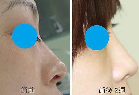鼻中隔軟骨 隆鼻