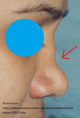 saddle nose