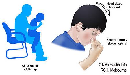 nasal bleeding 2